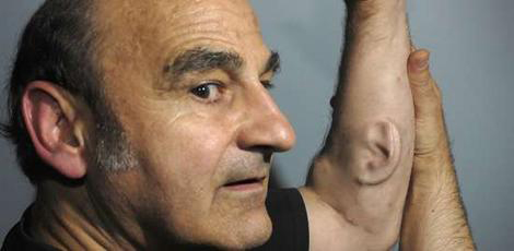 Stelarc, Ear on Arm, 2006-